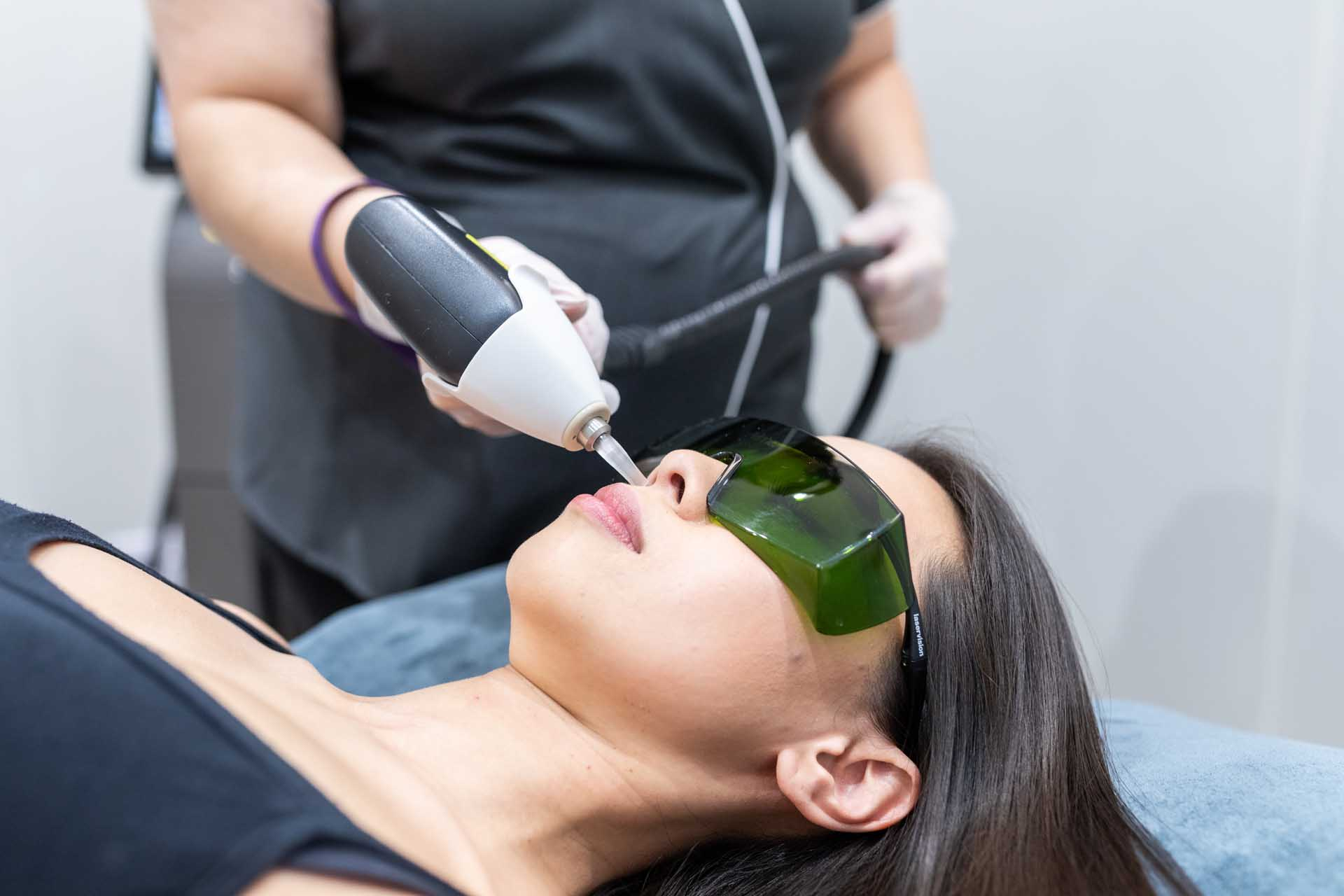 Laser hair removal session at Medspa beauty Clinic