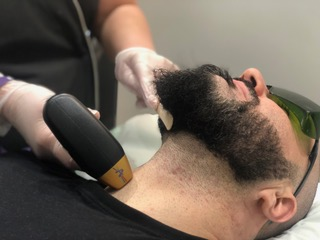 Male laser hair removal neck